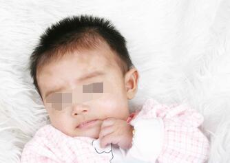 武汉儿童皮肤上有白色斑点是什么