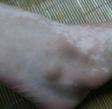 武汉白癜风医院详解白癜风发病早期有哪些症状呢