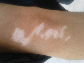 武汉白斑病医院哪家好?手臂上患白斑会有哪些症状?