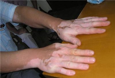 武汉哪个白癜风医院较好?武汉早期手部白癜风会有哪些症状呢?